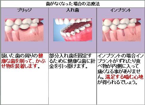 歯がなくなった場合の治療法.jpg